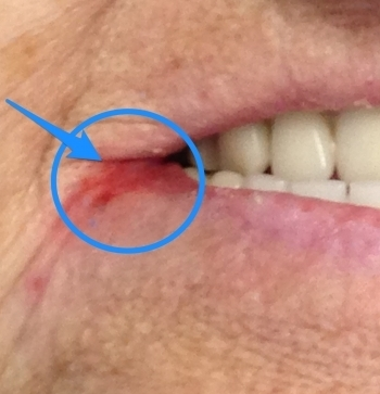 Angular Cheilitis.  What is it?
