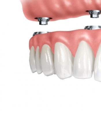 Dentures on Implants Course