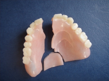 Rebase relines repairs make an appointment with battell denture clinic so your denture can be assessed and see whether you are a candidate for a denture reline solutioingenieria Image collections